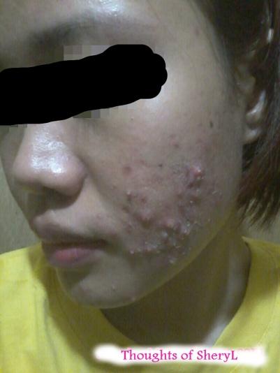 pimples1