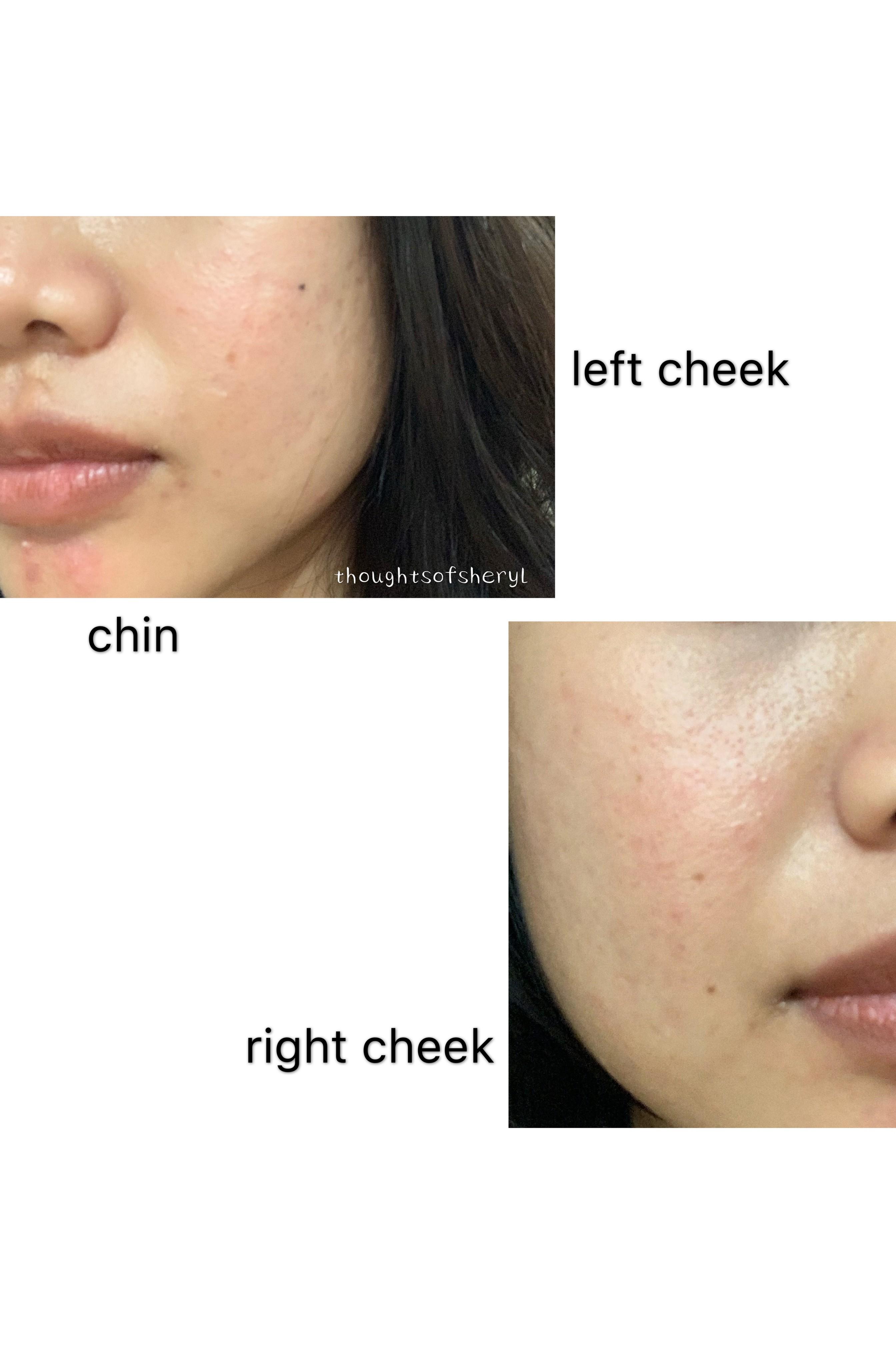 tokyo acne clinic